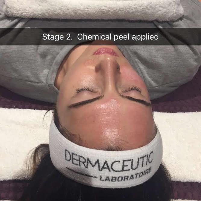 Stage 2- Chemical Peel
